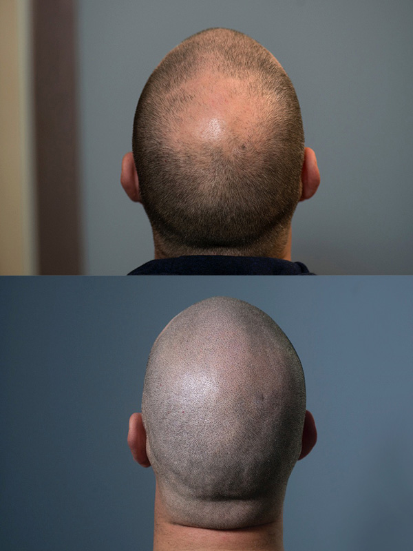 ScalpMicroPigmentation